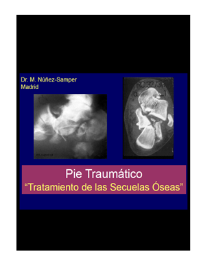 046 Pie Traumático Sec Óseas copia